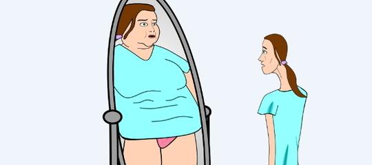 Anorexia y obesidad: similitudes